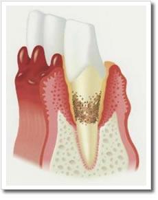 歯周病1.jpg