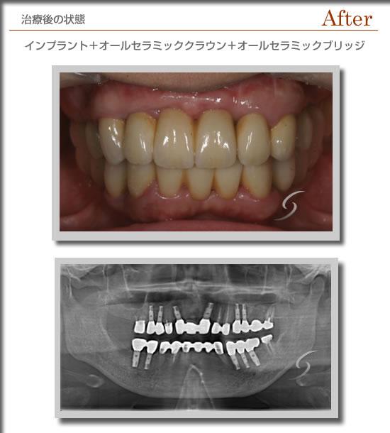 症例インプラントafter-4.jpg