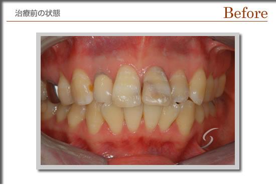 症例審美beforr-1.jpg